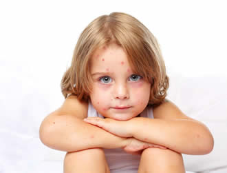 Your Child and Chicken Pox